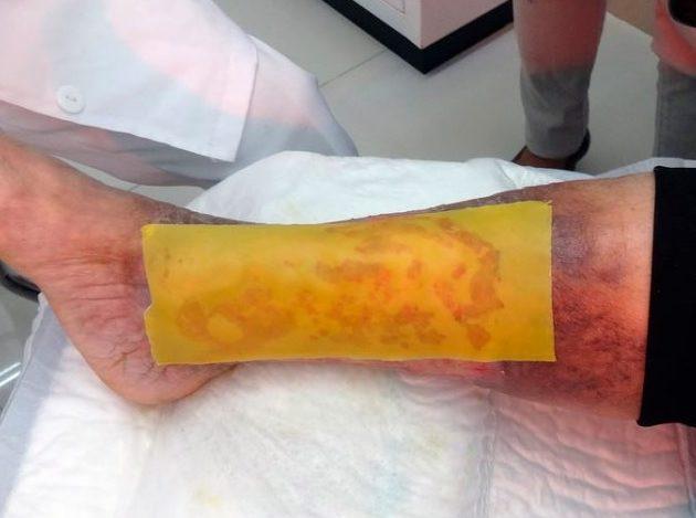 Este parche de miel evita amputaciones en gente con diabetes