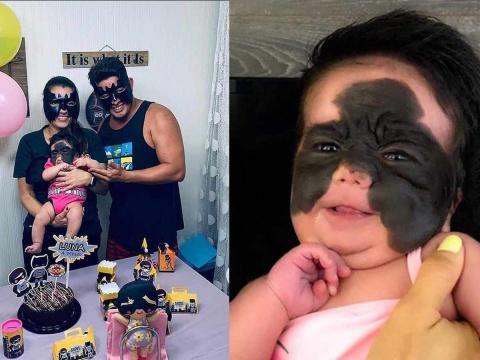 Nace con enorme marca en la cara; la apodan la 'Batibeba'