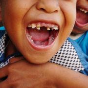 Extraen más de 500 dientes a un niño indio de 7 años